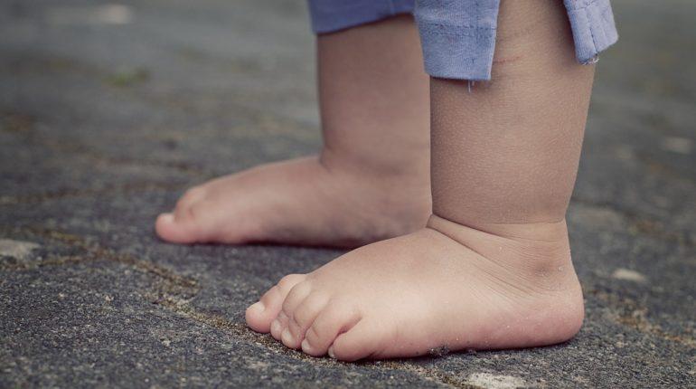 stopy-otylosc